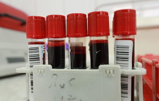 Ситуация с коронавирусом в Австралии