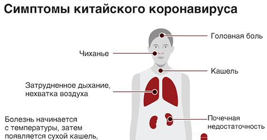 Основные признаки заражения новым коронавирусом